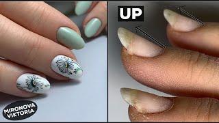 Ногти растущие вверх Комби маникюр Покрытие гель лаком