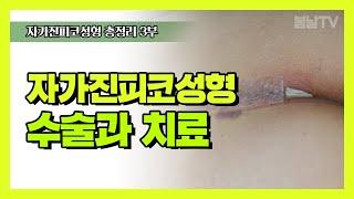 자가진피코성형 3편 : 마취와 수술과정/귀연골사용경우/…