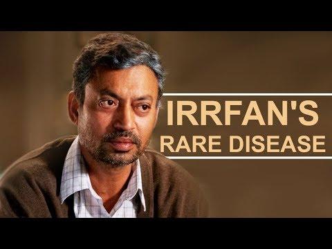 Irr Khan Health Issues  Irr's Rare Disease