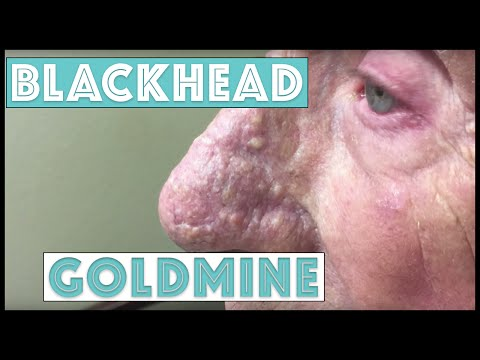 A Goldmine of Blackhead & Whitehead...