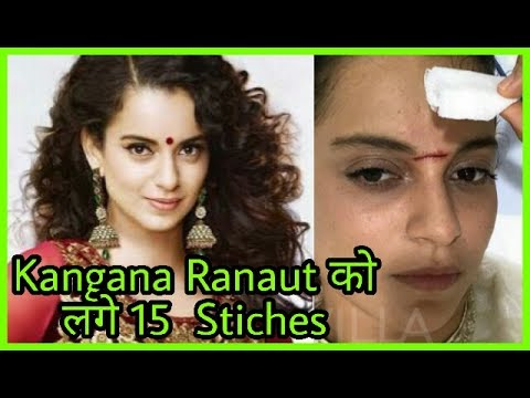 OMG! Kangana Ranaut Got 15 stiches on forehead| Injured with Sword while shooting for Manikarnika
