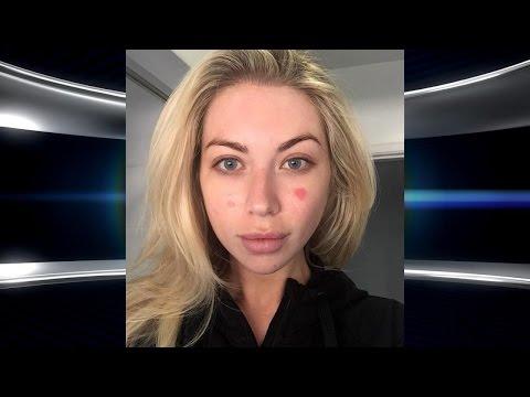 'Vanderpump Rules' Star Stassi Schroeder's Painful Skin Condition