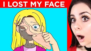 I LOST My FACE !  - A TRUE Animated Story