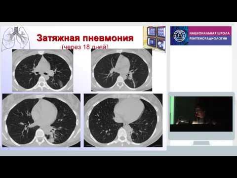 Рентгенодиагностика пневмоний у взрослых