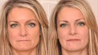 facial restorations