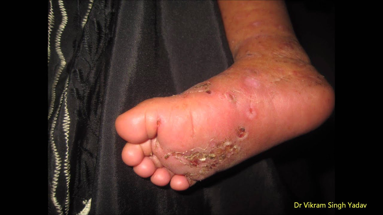 Scabies In Infant - YouTube