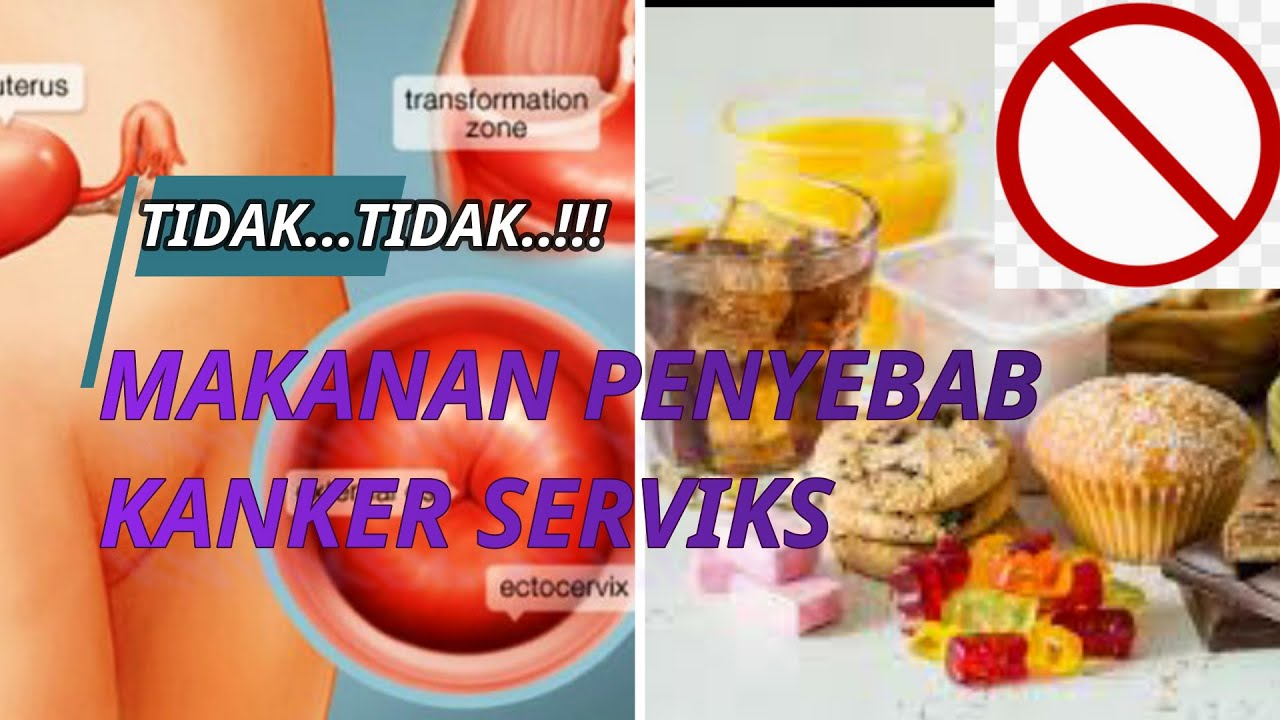 makanan penyebab kanker serviks - YouTube