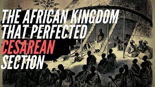 The Ancient African Kingdom That Perfected Cesarean Section
