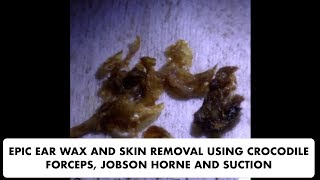 EPIC SKIN AND EAR WAX REMOVAL USING JOBSON HORNE, SUCTION AND CROCODILE FORCEPS - Ep 23
