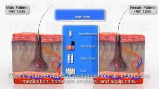 onion juice results for hair regrowth