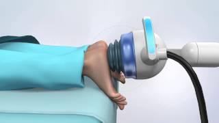 Video ESWT System: shockwave treatment for pain download MP3, 3GP, MP4, WEBM, AVI, FLV Desember 2017