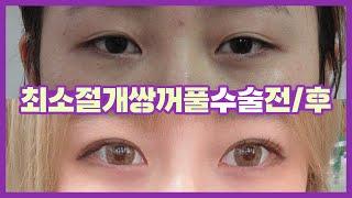 [부산/서면]쌍꺼풀수술(최소절개+눈매교정) 전후