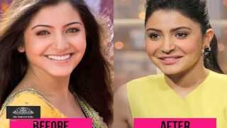 Shocking Cosmetic Surgeries in Bollywood | Celebrities Before & After