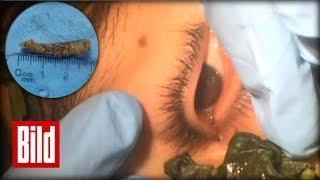 Wurm im Auge - Ekel Operation - Ärzte holen Wurm mit Basilikum raus
