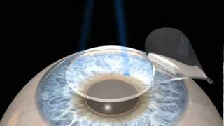 Wavefront Optimized LASIK