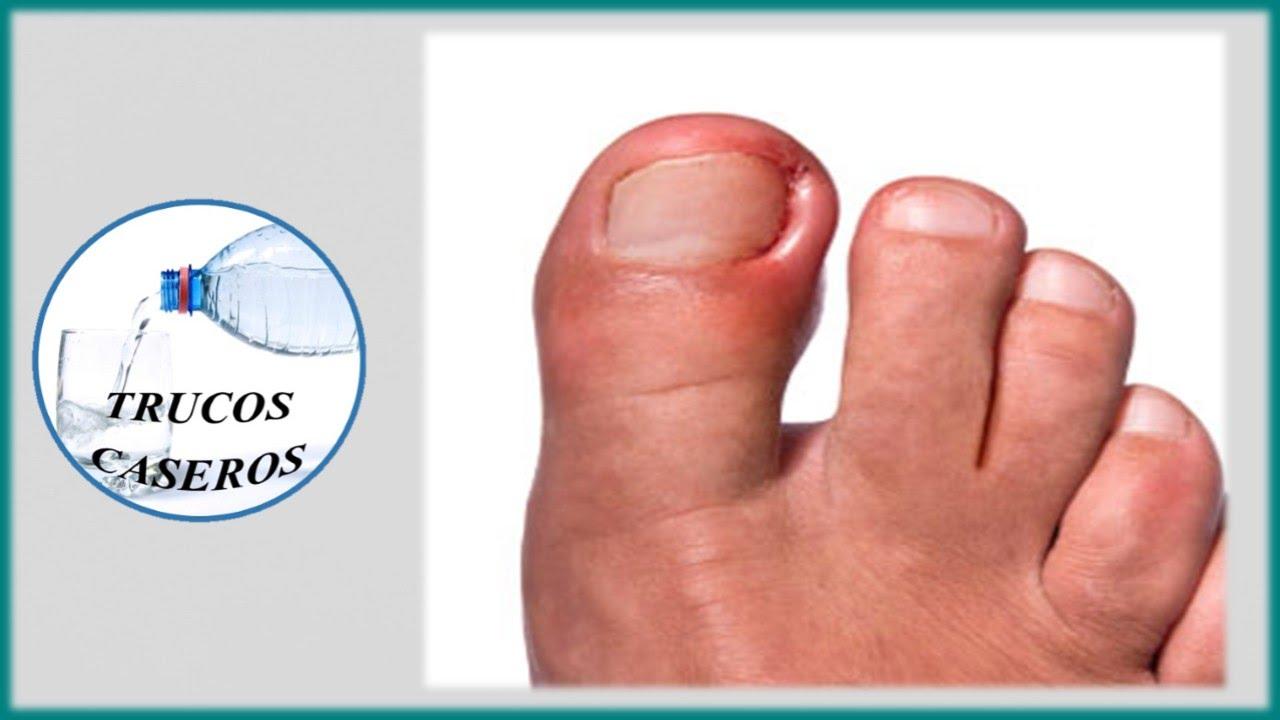 La inflamación de la vena en el pie el tratamiento las revocaciones