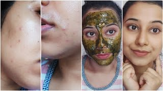 Best Winter Face Mask to Remove pimples Acnes Tiny bumps red bumps red marks Naturally at Home