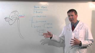 Treatments for Kidney Tumors - Kenneth Nepple, MD