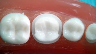 "Metal ceramic crown preparation "" for dental students """