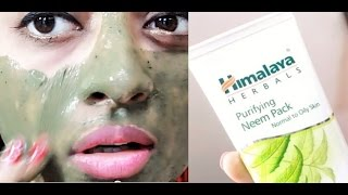 Himalaya Neem Face Pack For Acne & Glowing Skin  __ | SuperWowStyle