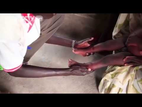 Urgent Action needed to deal with South Sudan's Looming Famine