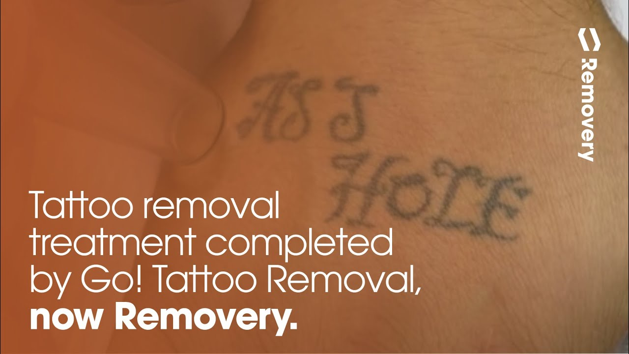 Laser Tattoo Removal On Hand   GO! Tattoo Removal   Allentown, PA
