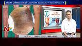 tratamentul laser al varicose strâmbă rog)