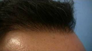 Hair Transplant by Hasson - 5734 Grafts - 1 Session