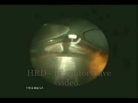 La chambre de combustion en video youtube for Chambre de combustion annulaire