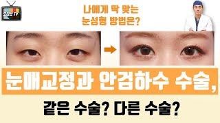 [모티브 성형외과] 눈매교정과, 안검하수 수술은 같은 …