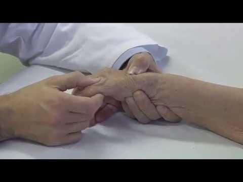 Diagnosi ecografica artrosi trapeziometacarpale