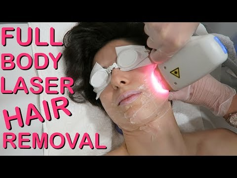 My Full Body Laser Hair Removal Experience!