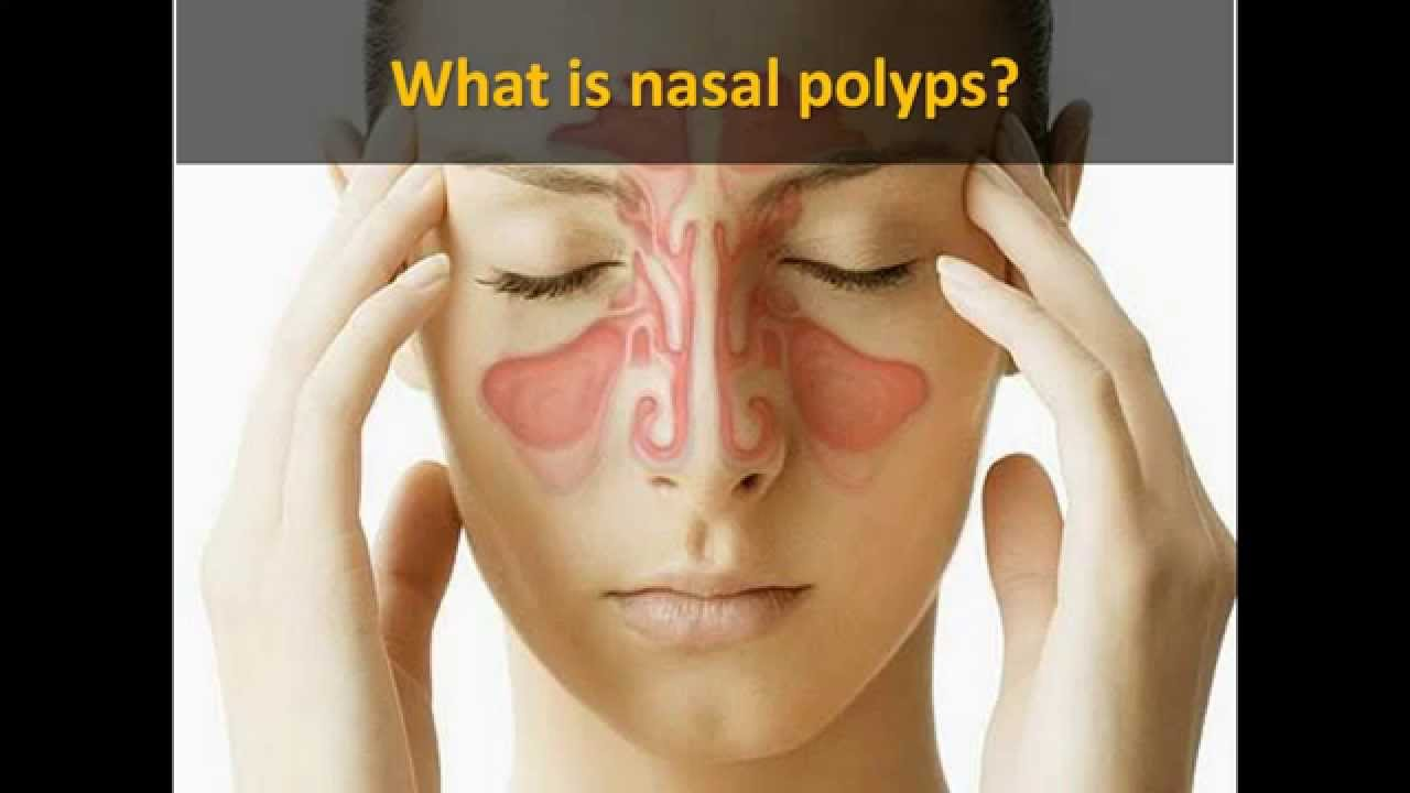 Polyps in the nose: treatment by various methods 58