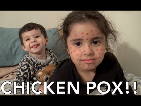REEMA GOT THE CHICKEN POX!!!!!