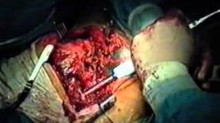 PTH: prothèse totale de la hanche sur complication de fracture pertrochonterienne