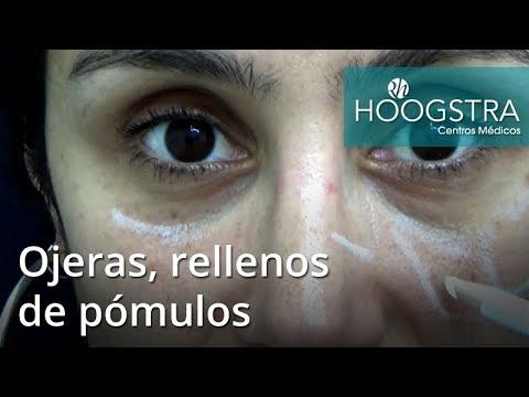 Ojeras, rellenos de pómulos (18052)