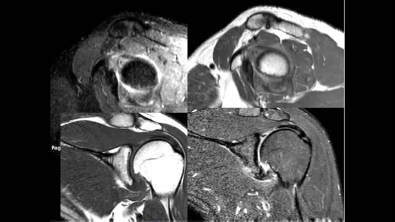 Dr Sumathi Wable Presenting MSK and MRI Cases of Radiology - YouTube