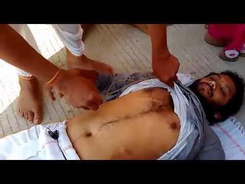 Nabhi (Navel) displacement Treatment by Himalayan guru -& GavyaSiddha at Dwaraka