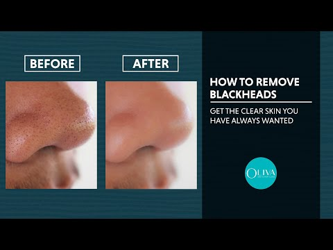 Blackhead Removal Treatments With Before And After Results