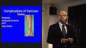 Malysheva despre video despre artroză