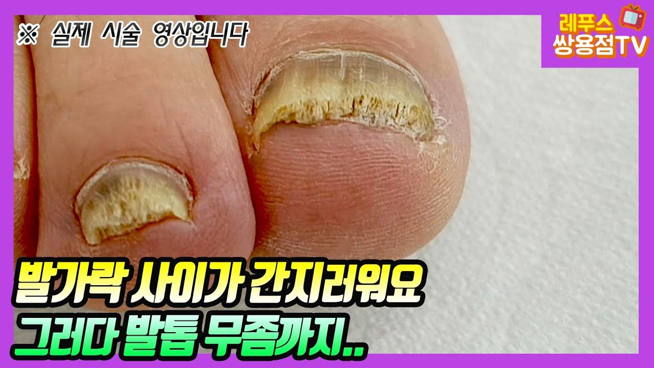 (피부무좀과 발톱무좀) 처음에는 발가락 사이가 간지럽더니 나중에는 발톱까지 노랗고 두꺼워졌어요~! / Athlete's foot