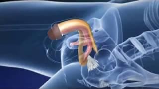 Operaciones de cambio de sexo