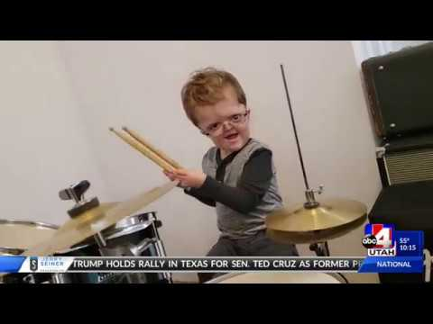 Edison The Great - Utah Caring Stories 10pm Apert Syndrome  2018 10 22