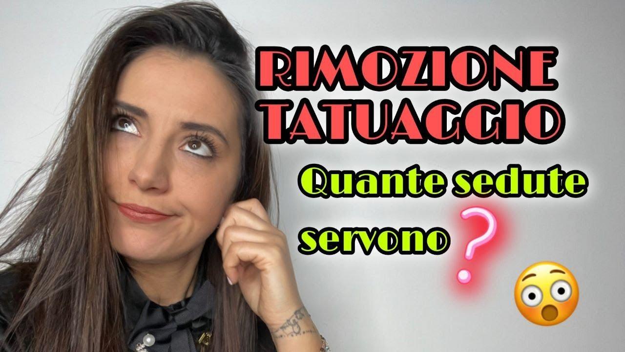 Rimozione Tatuaggio | Quante Sedute Servono? - YouTube