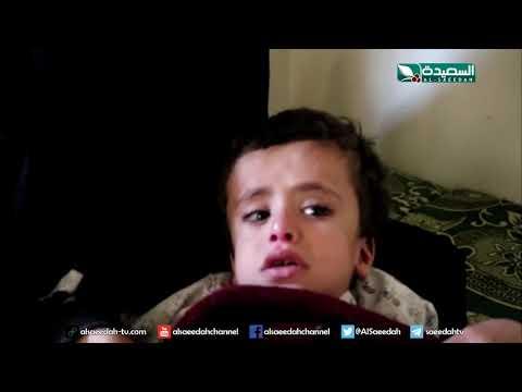 طفل يبلغ من العمر عاماً واحدأ ويعاني من عدة أمراض (18-10-2019)