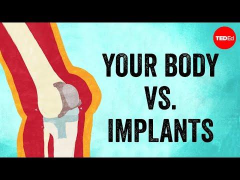 Video image: Your body vs. Implants - Kaitlyn Sadtler