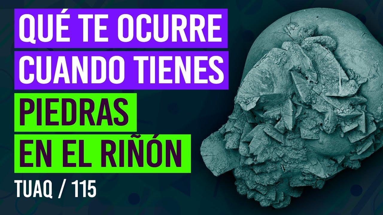 ¿Qué le ocurre a tu cuerpo cuando tienes #piedras en el #riñon? | #litiasis renal