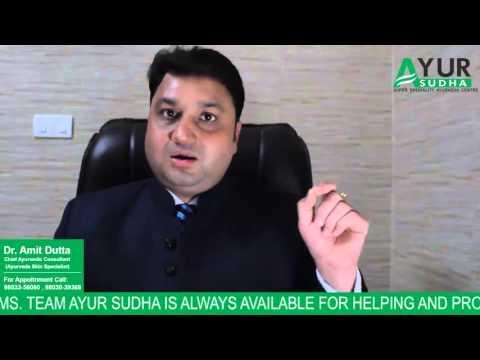 Alopecia Areata Ayurvedic Treatment/Skin & Hair Specialist ,Best Skin Clinic in Chandigarh, India