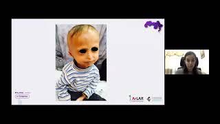 Sima Abu Al Saoud || Challenging Cases in Pediatric Rheumatology: Case 1