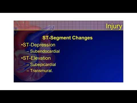 The 12-Lead ECG Course - STEMI Part 2